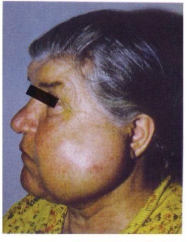 Внешний вид пациента с амелобластомой нижней челюсти.
