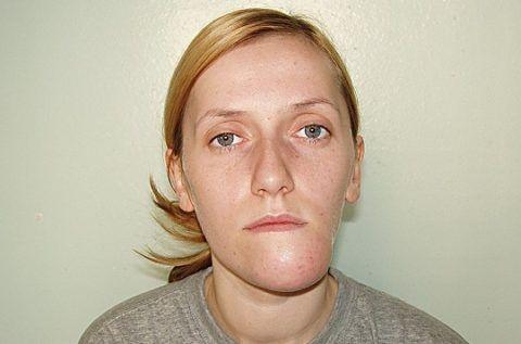 Асимметрия пациента с амелобластомой нижней челюсти