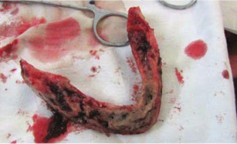 Субтотальная резекция нижней челюсти