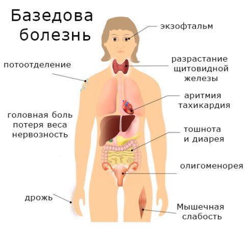 При Базедовой болезни страдают все органы и системы