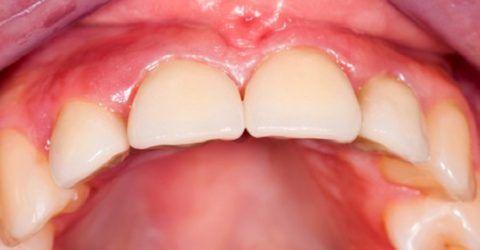 При снятии кандидозного налета открываются кровоточащие язвы.