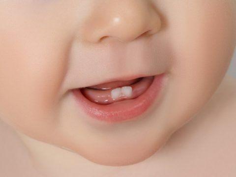 Белая точка на десне может быть предшественником зуба.