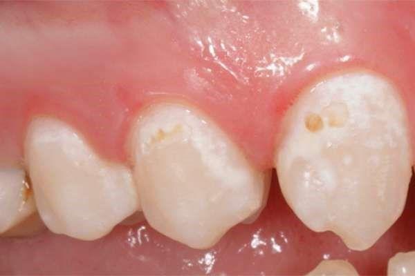 Начальный процесс деминерализации зубов на нескольких зубах