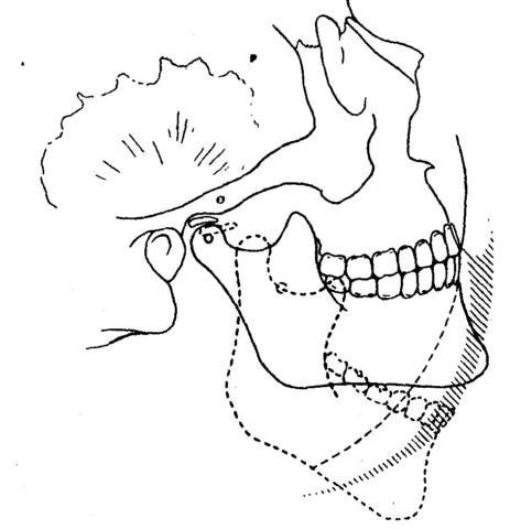 Движения при открывании рта