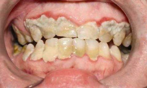 Наличие обильных зубных отложений, одна из главных причин развития заболевания