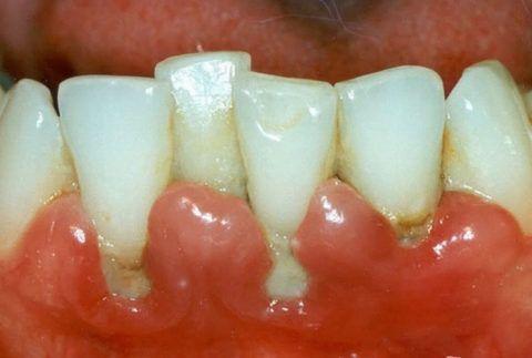 Пародонтит в области фронтального участка нижней челюсти
