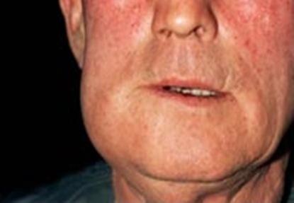 Абсцесс нижней челюсти.