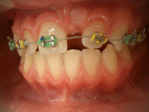 Исправление верхнего зубного ряда с присутствующей ретенцией левого центрального резца.