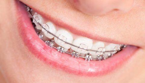При общении и улыбке выявляемые визуально брекеты могут вызывать незначительный дискомфорт.