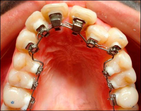 Исправление аномалии верхней зубной дуги со стороны полости рта.