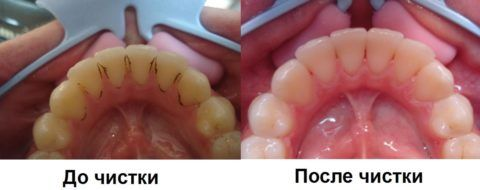 Пример того, как выглядят пораженные зубы до и после чистки