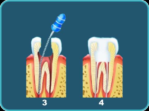 Зуб вскрывается, лечатся каналы, после чего ставятся пломбы