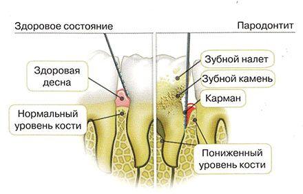 Пародонтит – причина гнойника на десне