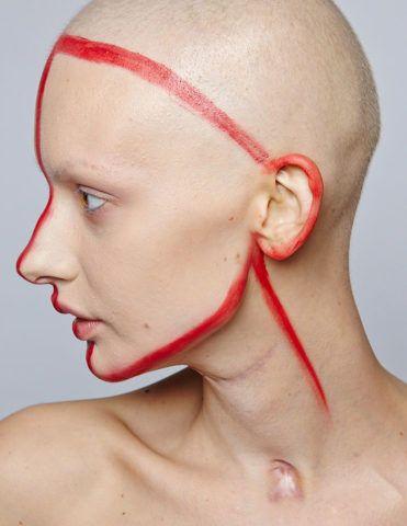 Опасность рака челюсти