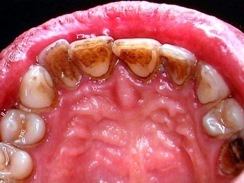 Развиваются различные заболевания в полости рта