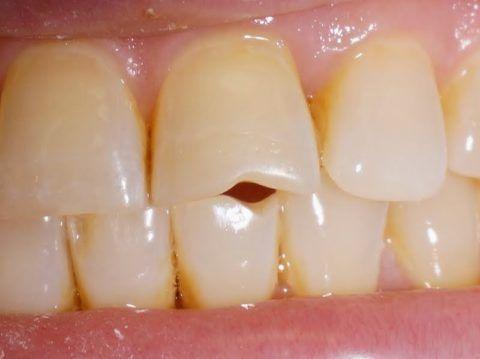 Из-за постоянного щелканья зубов обтачиваются зубы