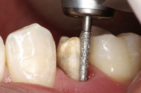 Препарирование полостей в пришеечной области, самая трудная задача для стоматолога