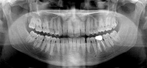 Ортопантомограмма пациента с язвенно-некротическом гингивите