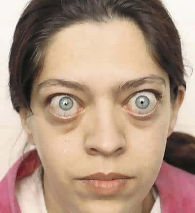 На фото – пациентка с выраженным экзофтальмом
