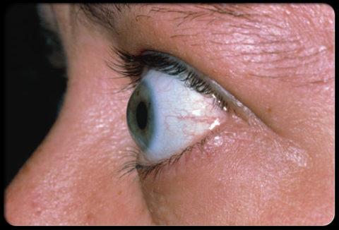 Типичный симптом гипотиреоза.