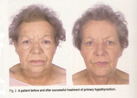 На фото – одна и та же пациента. Слева – с клиническими проявлениями гипотиреоза, справа – после успешного лечения