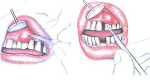 Лечение гнойного мешка на десне хирургическим способом