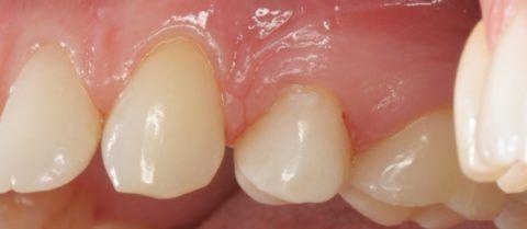 Деминерализация зубной эмали