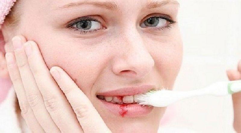 Кровь из десны – первый признак воспаления десен и гингивита