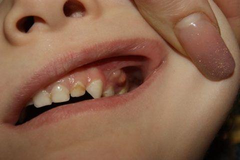 Гнойники в десневых карманах и налет на зубах у ребенка