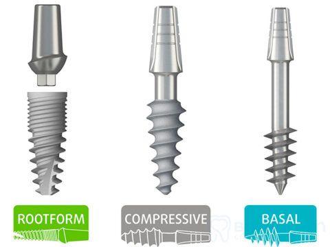 Разновидности системы трансплантатов ROOTT.
