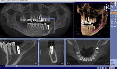 На фото видно как при помощи программы можно провести тщательное обследование 3D снимка альвеолярного отростка обоих челюстей, в том числе и после установки трансплантата.