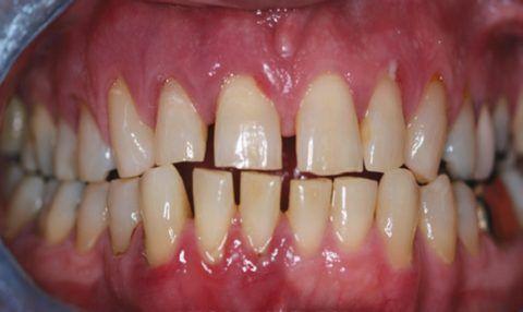 Начальные признаки заболевания, одновременно сочетающиеся с дефектом твердых тканей в пришеечной области.