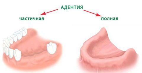 Схематическое изображение и расшифровка состояния потери зубов разной степени выраженности.