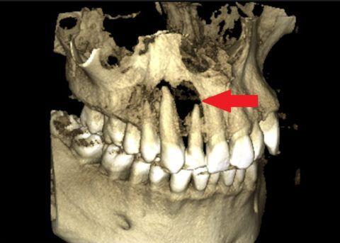 Выявление благодаря 3D компьютерной томографии выраженной деструкции кости в области 1.2, 1.3 зубов.