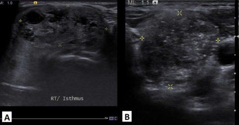 Узловые образования щитовидной железы различной эхогенности. (а – гиперэхогенный узел, б – изоэхогенный