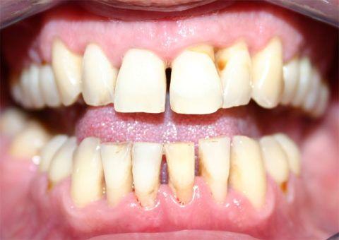 Постепенное оголение шейки зуба
