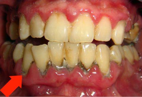 Начинается процесс гниения в оголившихся шейках зуба