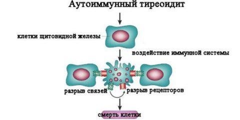 Принцип развития патологического процесса в клетках щитовидной железы