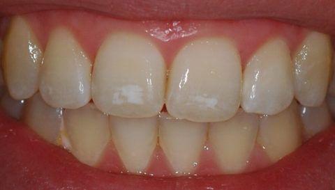 На фото кариес в стадии пятна на резцах и клыках верхней челюсти.