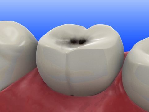 На фото внешний вид зуба при поверхностном кариесе жевательной поверхности.