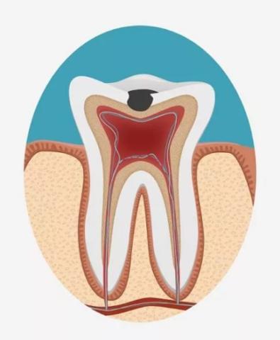 Схематическое изображение поражений твердых тканей зуба при среднем кариесе.