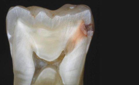 Продольный срез глубокого кариеса зуба на границе с пульповой камерой.