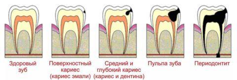 Последовательность распространения инфекционного процесса через полость зуба.