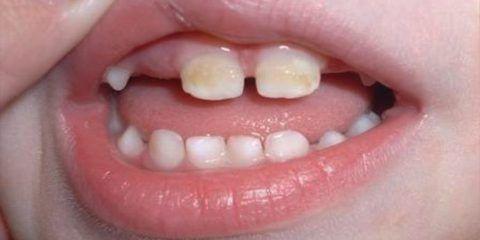 Что делать для здоровья детских зубов