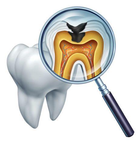 Кариес — разрушительный процесс твердых тканей зуба