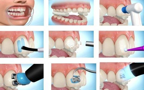 Этапы установки брекет-системы на зубы