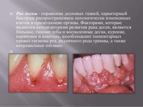 Рак языка десны