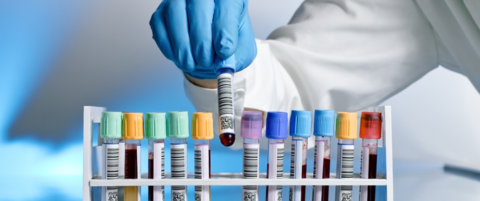 Зачем сдают анализы на гормоны • Лечение гипертонии