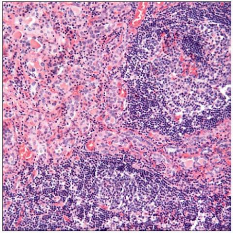 Микропрепарат ткани железы при АТХ.