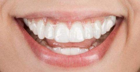 3D-smile